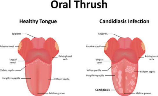 Pictures of yeast infection in throat 11